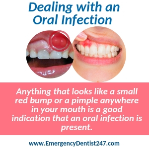 dealing with an oral infection memphis