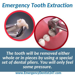 emergency tooth extraction fresno