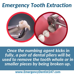 emergency tooth extraction knoxville tn