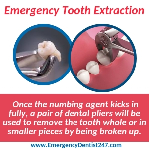 emergency tooth extraction