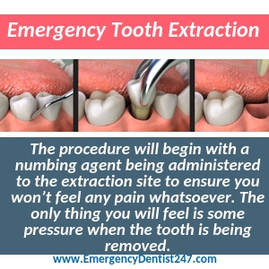 having an emergency tooth extraction tucson