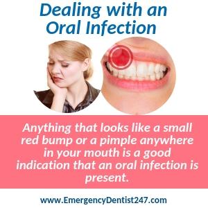 Emergency Dentist Houston | Find a Local 24/7 Dentist Today