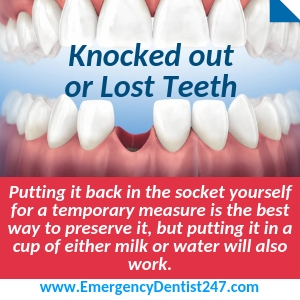 Emergency Dentistry Nashville 24/7 | Call Today to See A Dentist