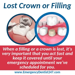 lost crown or filling oklahoma city