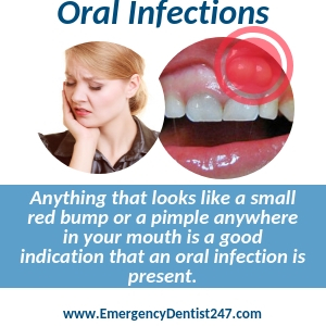 oral infections knoxville tn