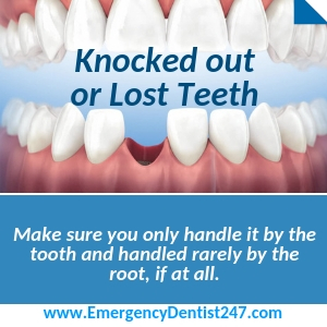the loss of an adult tooth fresno