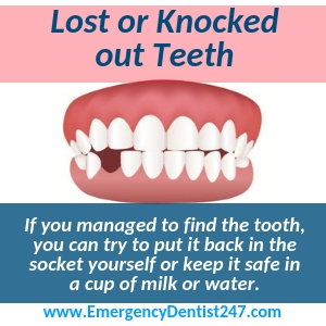 what to do when a tooth is knocked out los angeles