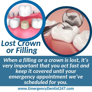 what to do when you lose a filling or a crown los angeles