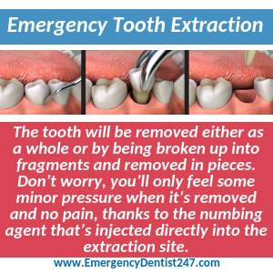 what to expect from an emergency tooth extraction memphis