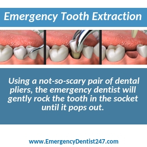 what to expect when you need to have an emergency tooth extraction los angeles