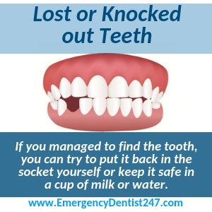 lost or knocked out teeth yonkers