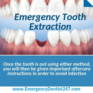 tooth extraction cincinnati