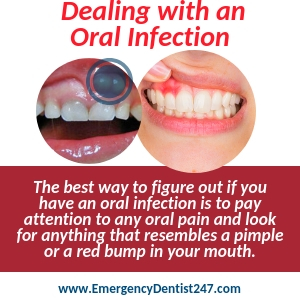 abscessed teeth infected gums and oral infections stockton ca