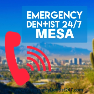 emergency dentist vs emergency room doctor mesa az