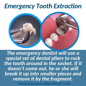emergency tooth extraction mesa az