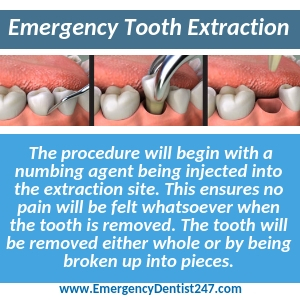 emergency tooth extraction stockton ca