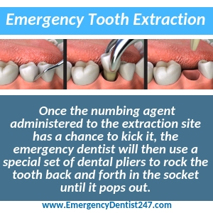 emergency tooth extraction toledo oh