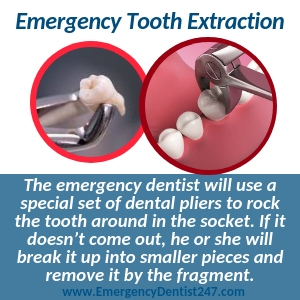 going for an emergency tooth extraction virginia beach