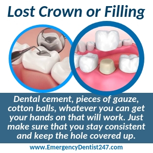 losing a filling or a crown albuquerque nm