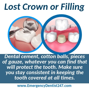 lost crown or fillings raleigh nc