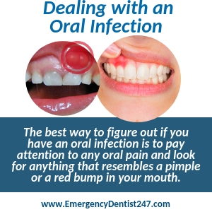 oral infections abscessed teeth toledo