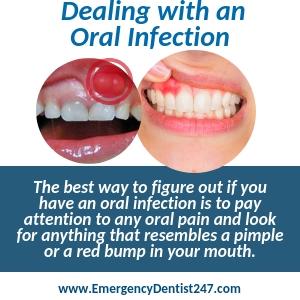 Emergency Dentist Toledo Ohio | Find 24/7 Dental Care