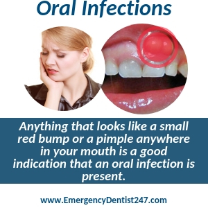 oral infections abscesses buffalo ny