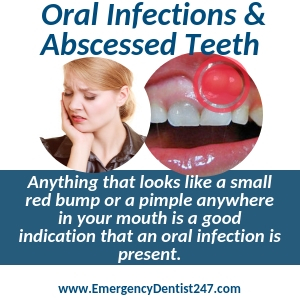 oral infections and abscessed teeth virginia beach