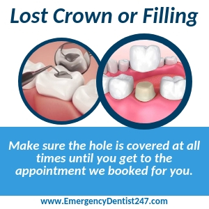 the loss of a filling or a crown miami