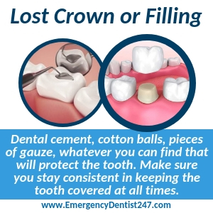 what to do about a lost filling or crown in newark