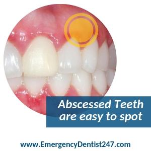 Abscessed Teeth brooklyn