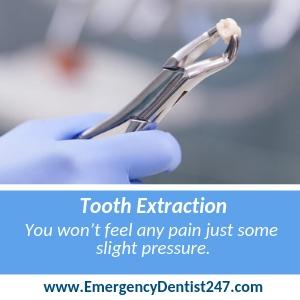 Emergency Tooth Extraction ORANGE CA
