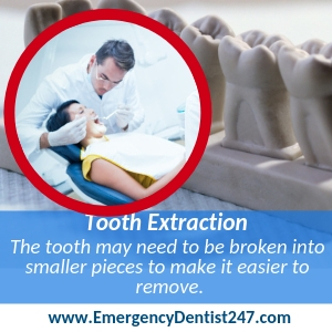 Tooth Extraction brooklyn