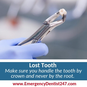 lost tooth chicago emergency
