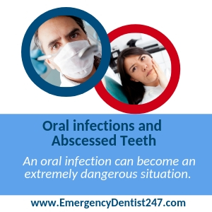 oral infection houston emergency dentist