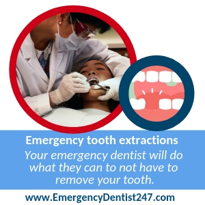 tooth extraction in chicago